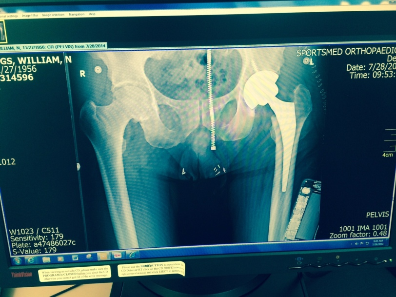 Hip new reality in place. Also x-rayed were my phone and zipper. Through.